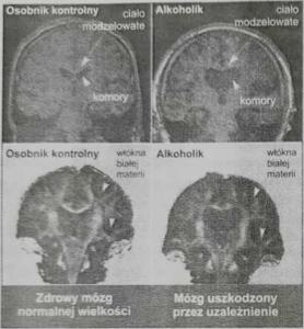 Mozg-alkoholika-prywatny-osrodek